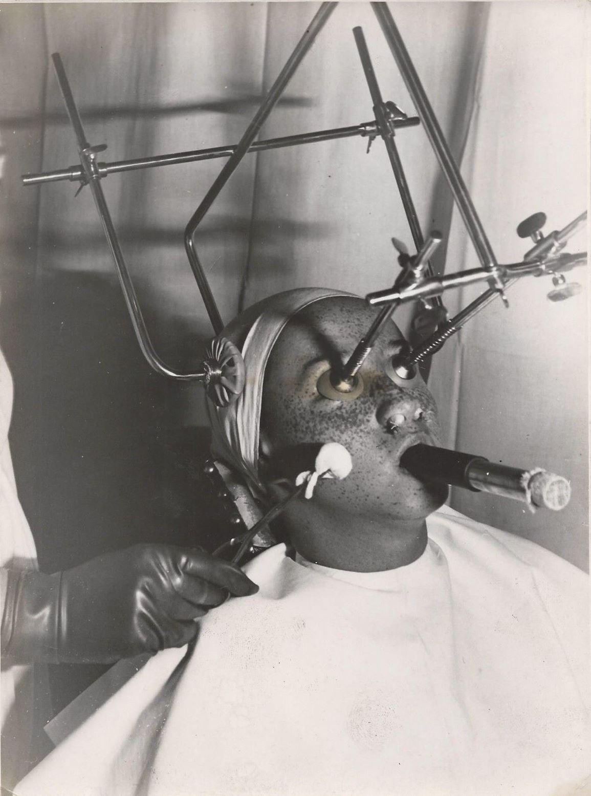 Photographe inconnu. Hungary Electroschock Psychiatry 1930. Via ebay
