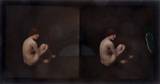 A Lumière Autochrome Stereo Nude Portrait Study, seated girl, hands clasped around left knee